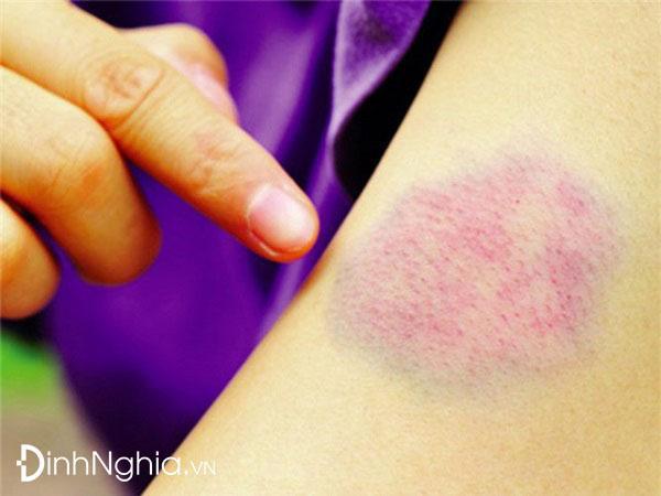 dấu hiệu và triệu chứng của nhiễm trùng máu là gì