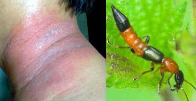 Kiến ba khoang cắn có thể làm do da bị tổn thương nặng