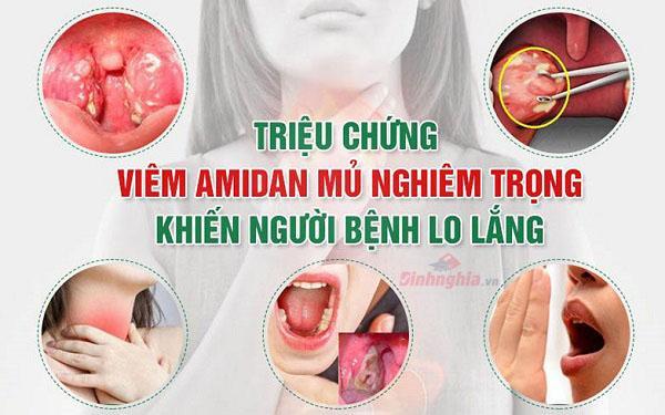 một số triệu chứng của viêm amidan là gì
