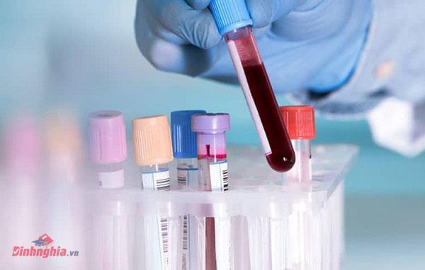 xét nghiệm máu để chuẩn đoán ung thư xương